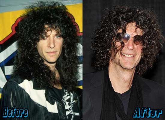 Howard-Stern-Plastic-Surgery-Before-and-After-1
