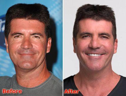 simon-cowell-plastic-surgery-1