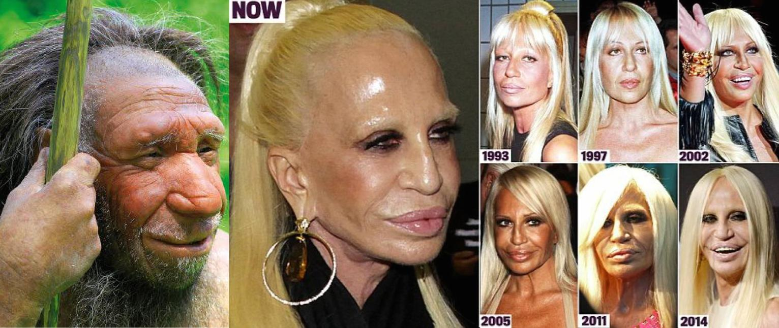 20 Celebrities Whose Plastic Surgeries Went Awry