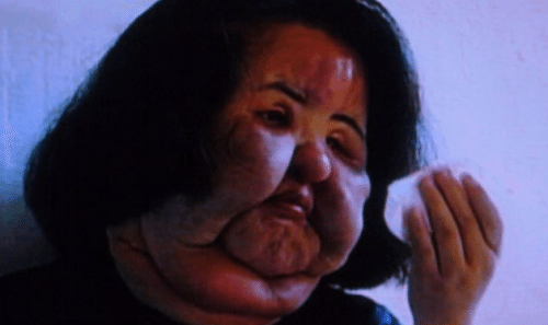 plastic-surgery-gone-wrong-15